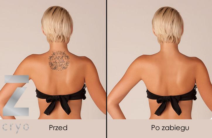 Znieczulenie Przed Usuwaniem Tatuażu Imeso